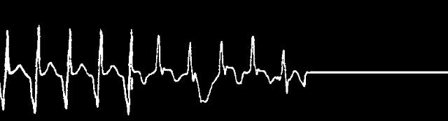 心脏电路图显示器上父亲的心脏跳动曲线越来越低