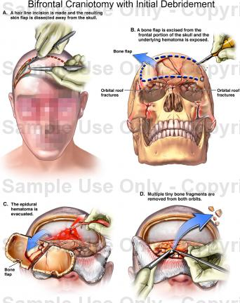 颅底骨折结构与出血的关系-脑外科专家